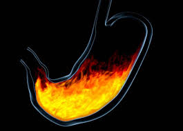 Don't ignore symptoms of acid reflux